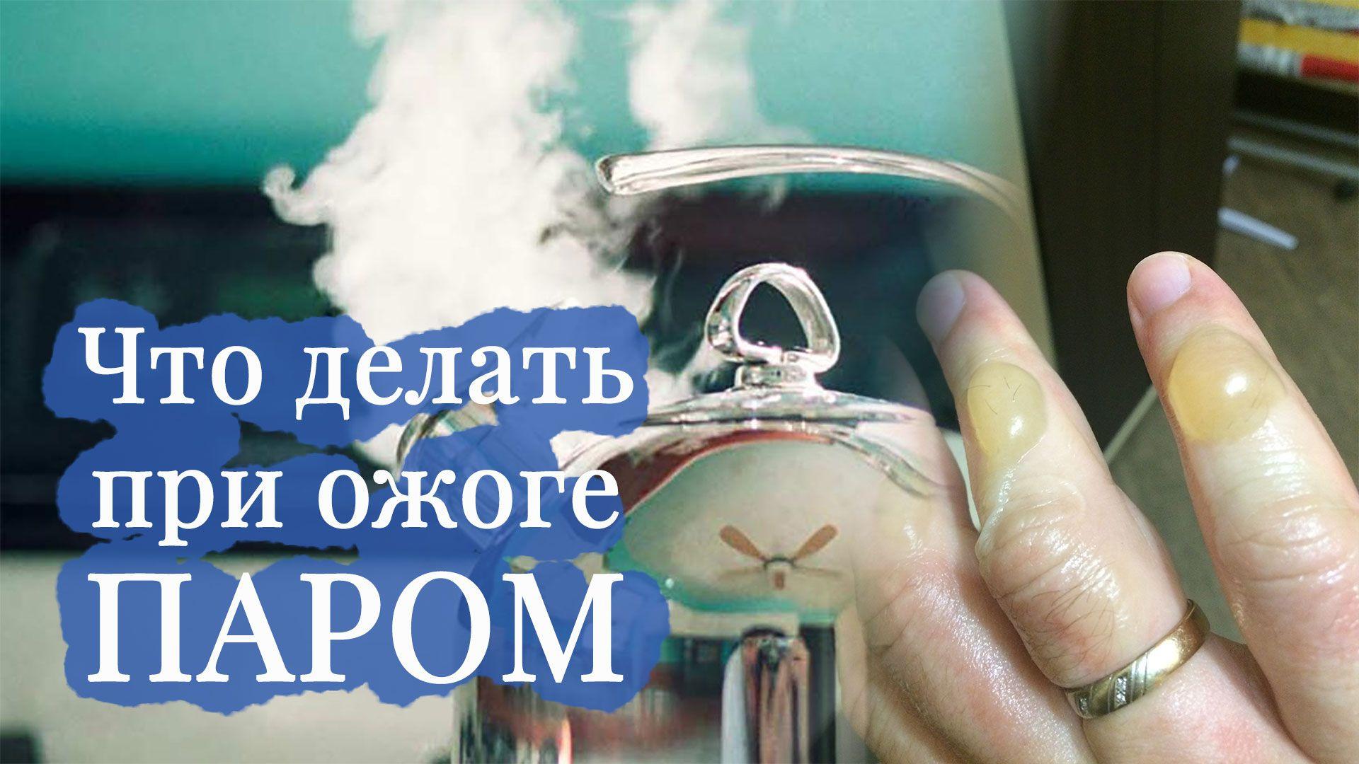 Что делать при различных ожогах: советы при ожоге кипятком, маслом, паром